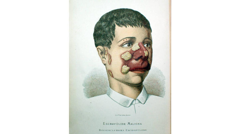 Otra lámina del 'Álbum Clínico de Dermatología' de Pérez Ortiz (1886). (Museo Olavide)