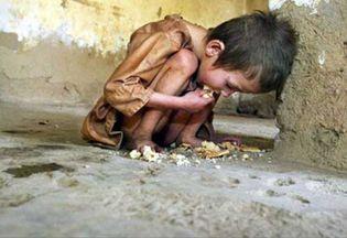 Foto: La desnutrición causa un tercio de las muertes infantiles