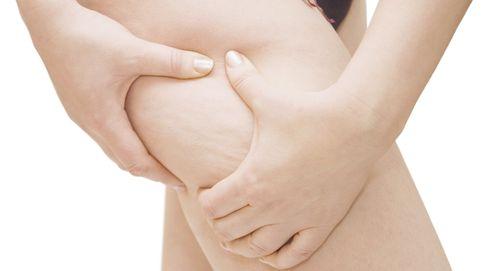 La dieta para adelgazar, acabar con la retención de líquidos y eliminar la celulitis
