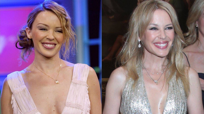 Kylie en 2002 y en 2018. Mismo gesto, misma piel, 16 años de diferencia. (Getty)