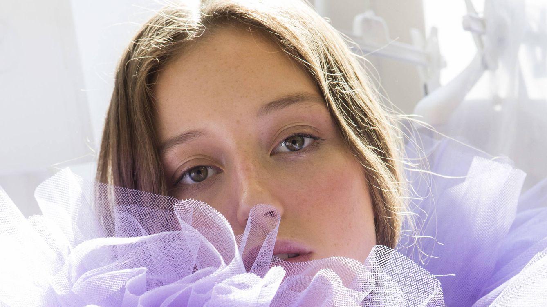 Foto: Las arrugas aparecen de las formas más insospechadas. (Imaxtree)