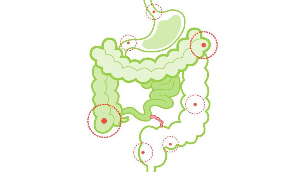 Colitis ulcerosa: causas, síntomas y remedios