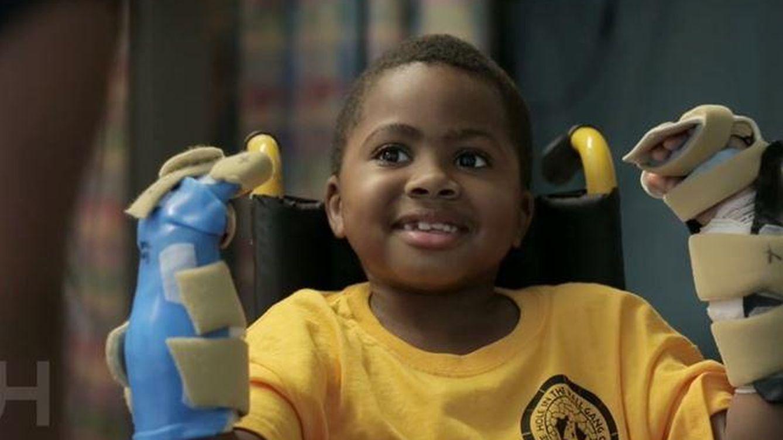 Un niño de ocho años recupera las dos manos tras un doble trasplante