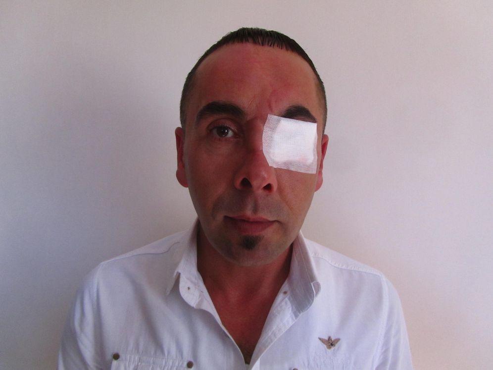 Foto: Hakan Yaman, a quien un policía turco sacó un ojo con un hierro durante la revuelta de Gezi en 2013 (D. Iriarte)