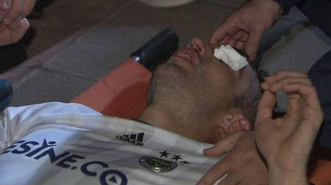Robin van Persie dice que sufre un desgarro, pero que el ojo no está afectado
