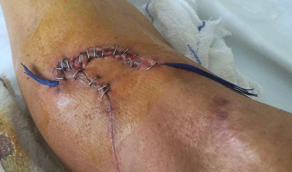 Foto: Tremenda imagen de la herida que le provocaron a Fran Ventoso los frenos de disco (FOTOS: www.facebook.com/fran.ventoso)