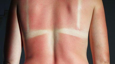 Cómo curar las quemaduras del sol, según un dermatólogo
