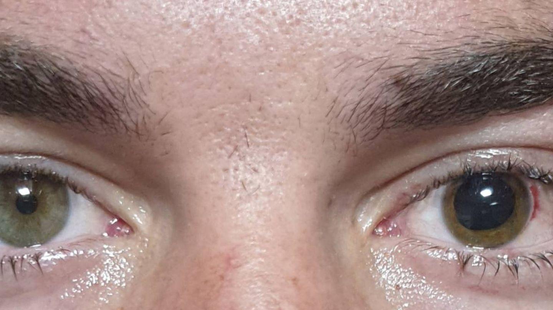 Primer plano de los ojos de Logan