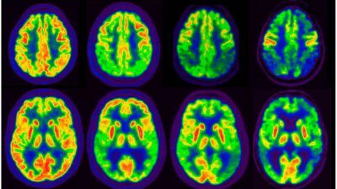 Revierten la pérdida de memoria del Alzheimer mediante una terapia génica