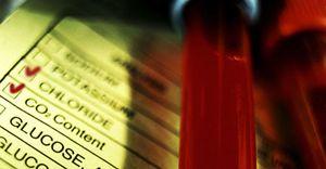 Foto: Un análisis de sangre permite diagnosticar alteraciones cardíacas en primaria