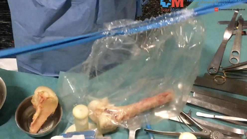 Bancos de huesos: así se talla la pelvis de un cadáver para mejorar una vida