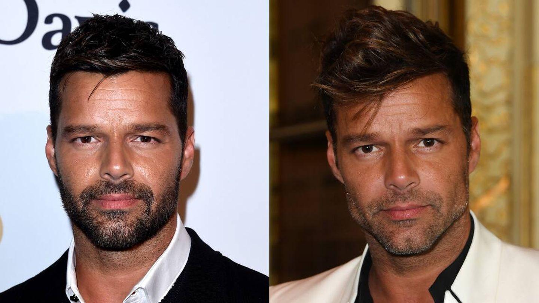 Detalle del posible relleno en el ángulo mandibular de Ricky Martin, comparando fotografías de 2015 y 2016. (Getty)