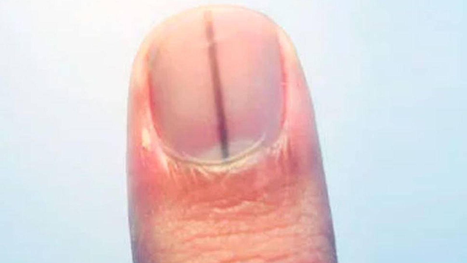 Salud: La marca en la uña que puede desvelar que sufres un melanoma