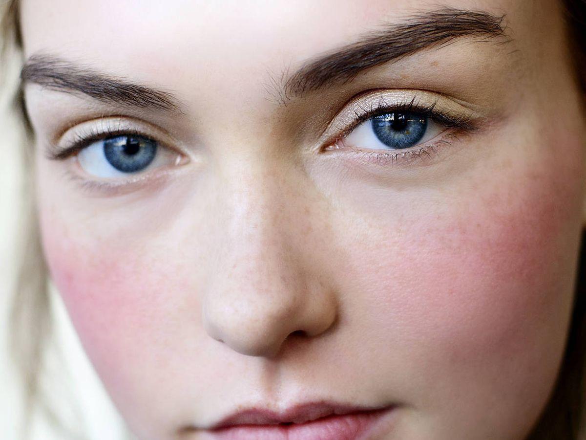 Foto: Cómo cuidar una piel sensible y con acné. (Imaxtree)