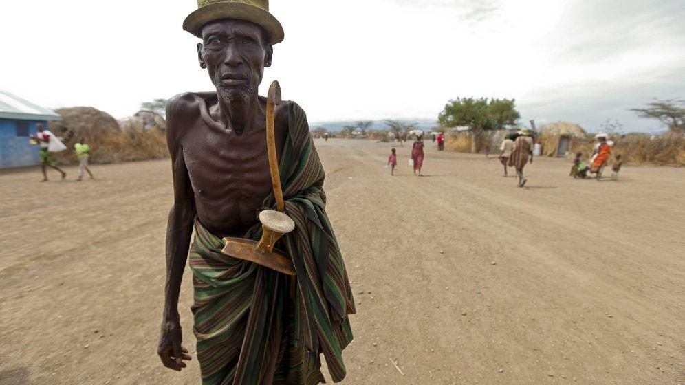 Foto:  Un anciano de la etnia Turkana, en Kenia, con problemas de malnutrición. (EFE)