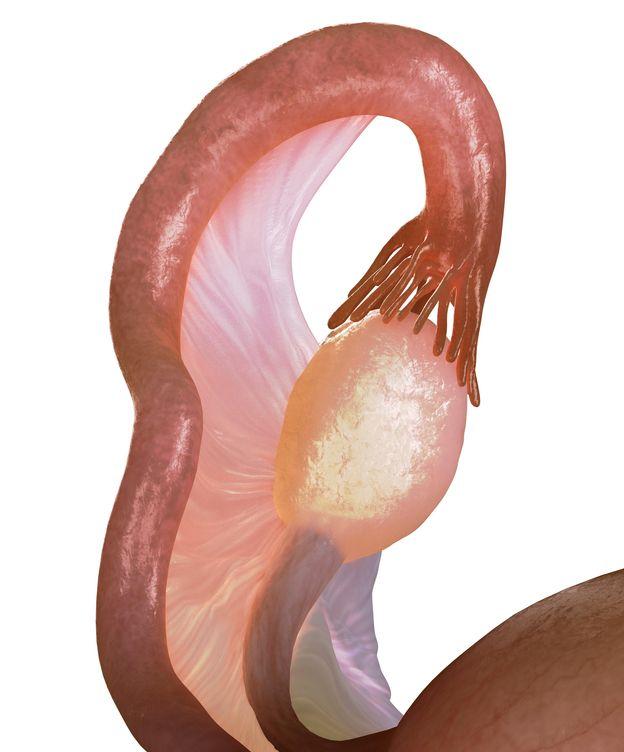 Foto: Imagen de un ovario (Corbis)
