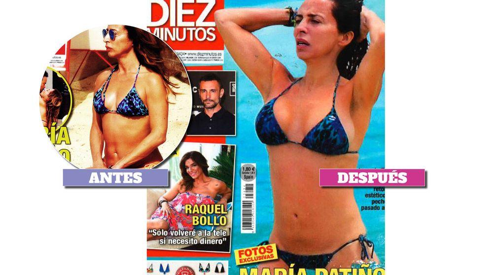 María Patiño y otras 15 famosas antes y después de operarse el pecho