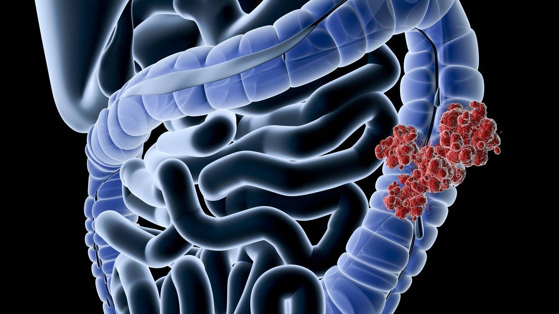 Ilustración del cáncer de colon. (iStock)