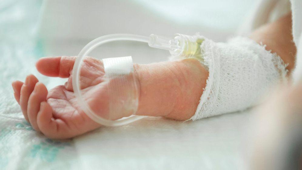 Foto: Bebé prematuro  recibe alimentación intravenosa en el interior de una incubadora (Efe)