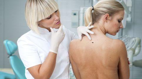 La inteligencia artificial supera a los mejores dermatólogos detectando cánceres de piel