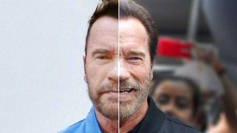 ¿Qué le ha pasado a Arnold Schwarzenegger en el rostro?