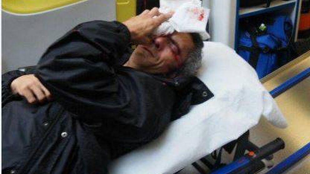 Un manifestante recibe un impacto en el ojo con una pelota de goma en el 1-O