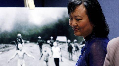 El láser ayuda a la 'niña del napalm': Kim Phuc borrará sus cicatrices físicas