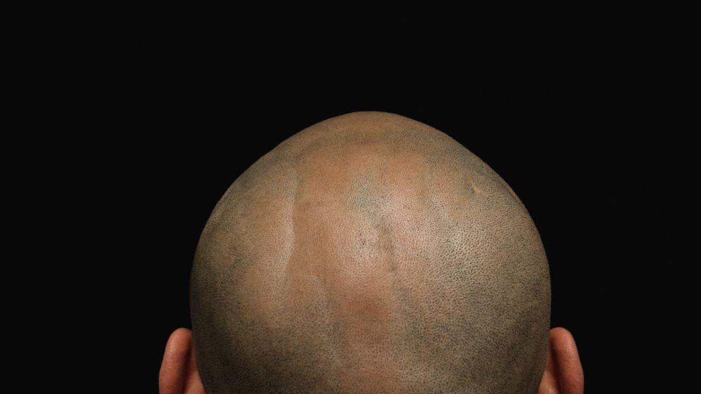 ¿El fin de la alopecia? Científicos consiguen volver a hacer crecer pelo