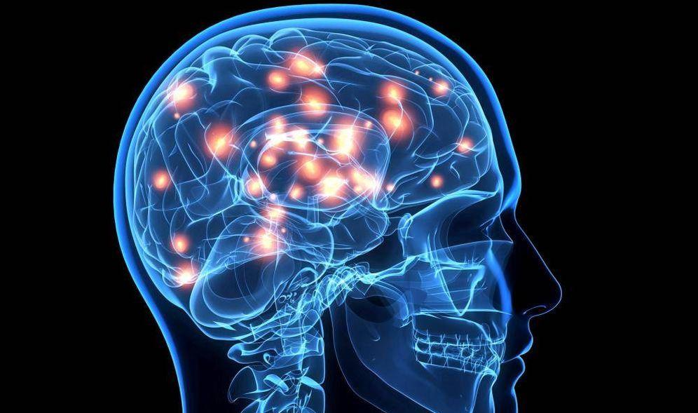 Foto: La isquemia cerebral puede provocar la muerte.