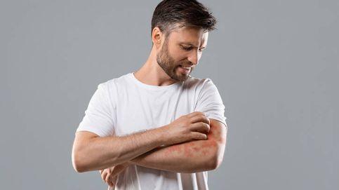 Psoriasis y vacuna de covid-19, ¿sí o no?