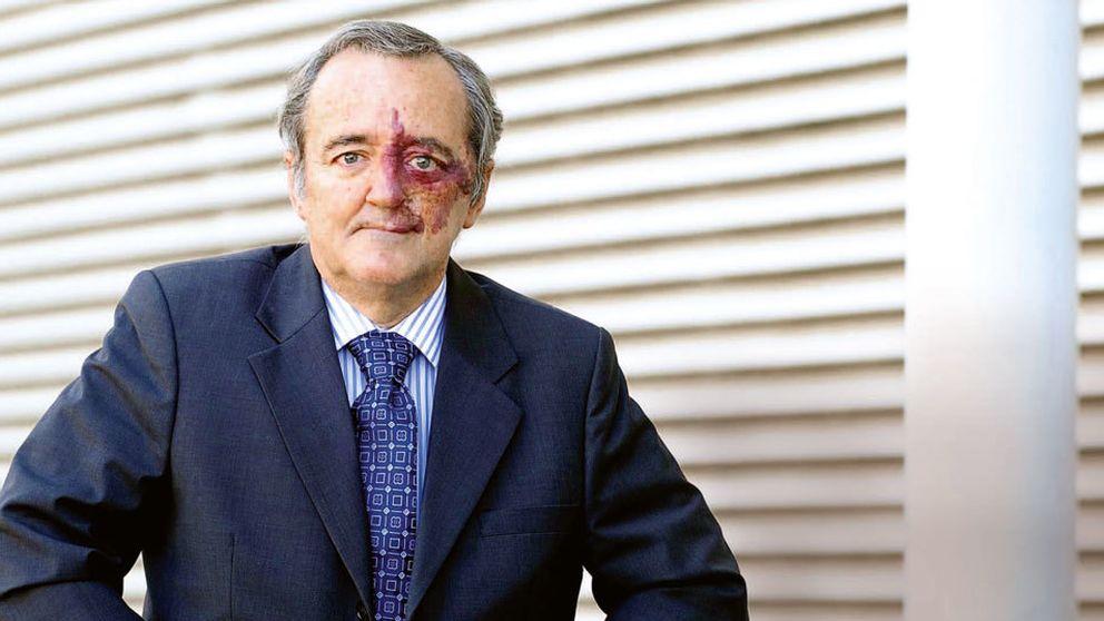 La investigación en España está en un estado casi catatónico