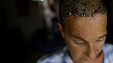 Los heridos de Maduro: Merece la pena luchar