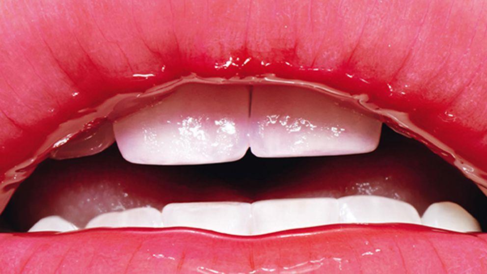 ¿Se te agrietan los labios? Tus hábitos cotidianos pueden tener la culpa