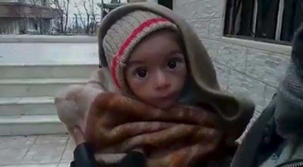 Foto: Imagen tomada supuestamente en Madaya de un niño con síntomas de desnutrición (Reuters).