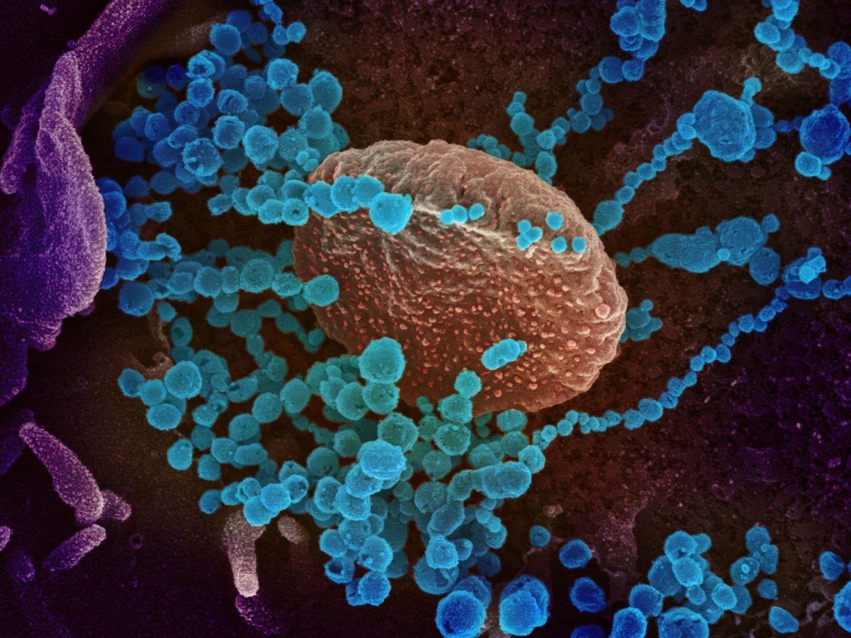 Foto: Imagen de microscopio electrónico que muestra en azul al SARS-CoV-2, el virus que causa el brote de covid-19. (EFE)