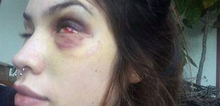 Post de El cantante Tea Time, acusado de pegar palizas a su novia de forma reiterada