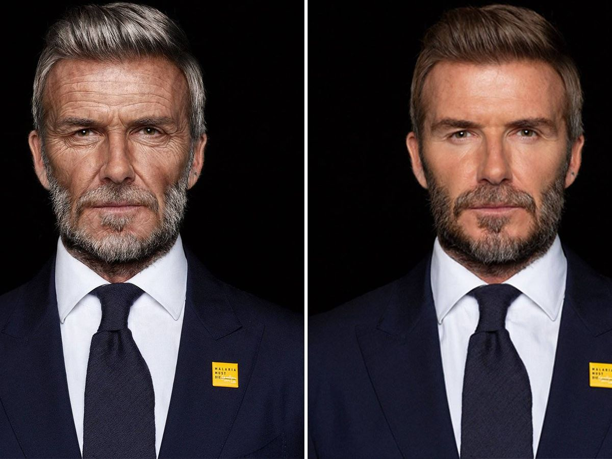 Foto:  David Beckham. (Malaria Must Die)