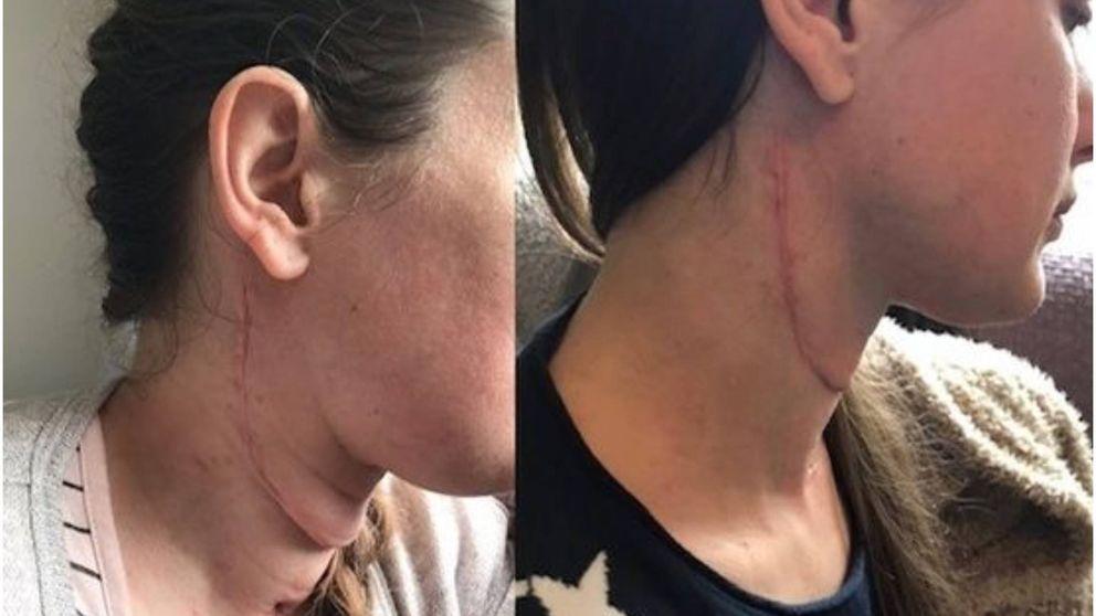 Reconstruyen la lengua de una chica con cáncer empleando músculos del brazo