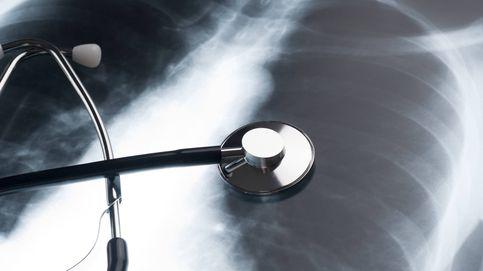 Cuidado: estos son los primeros síntomas del cáncer de pulmón