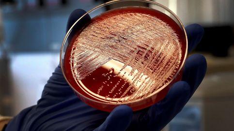 Nueva alerta sanitaria por listeriosis vinculada a chicharrones en Málaga