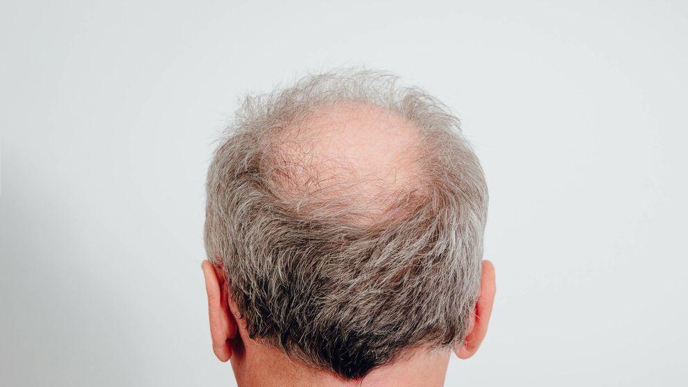 Así evoluciona la caída del pelo en los hombres (y cuál es la década clave)
