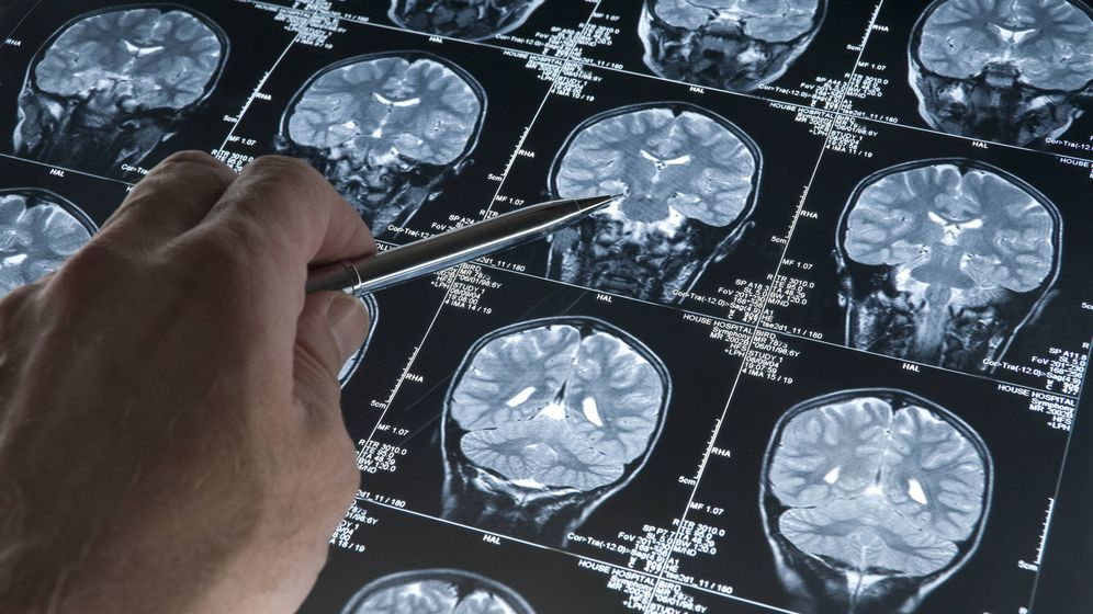 Foto: Más de 46 millones de personas sufren de Alzheimer en el mundo. (iStock)
