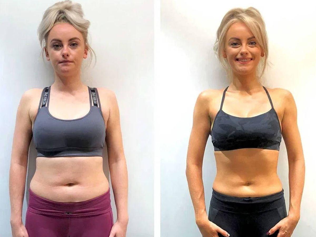 Foto: El cambio entre el antes y el después de Katie McGlynn es evidente