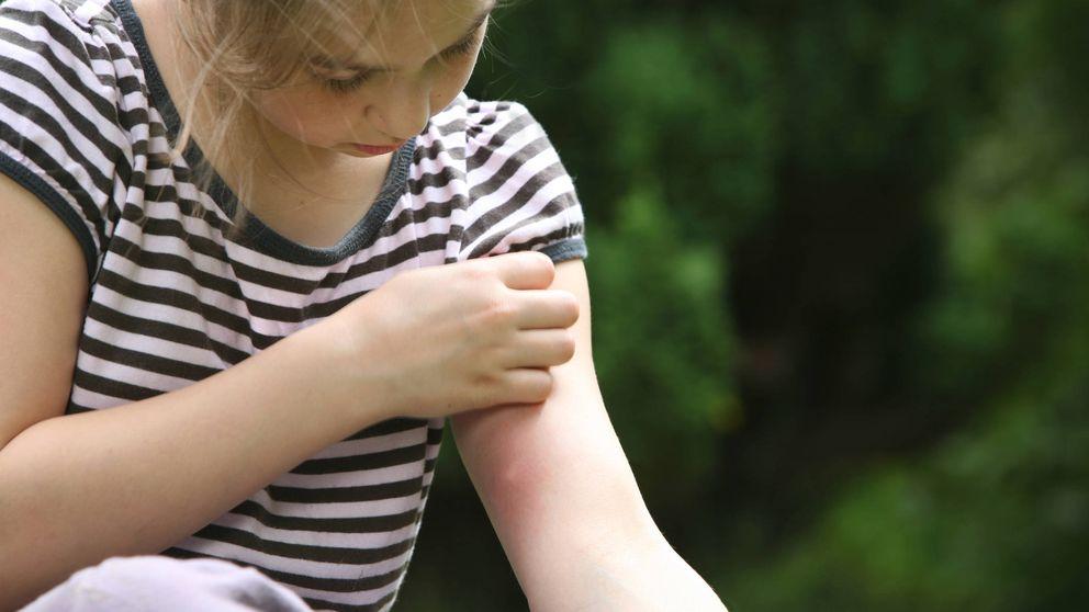 Por qué los mosquitos pican a unas personas  y no a otras (y qué hacer)