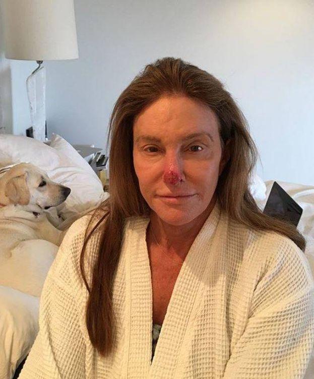 Foto: Caitlyn Jenner tras haber sido operada de cáncer de piel. (Instagram)
