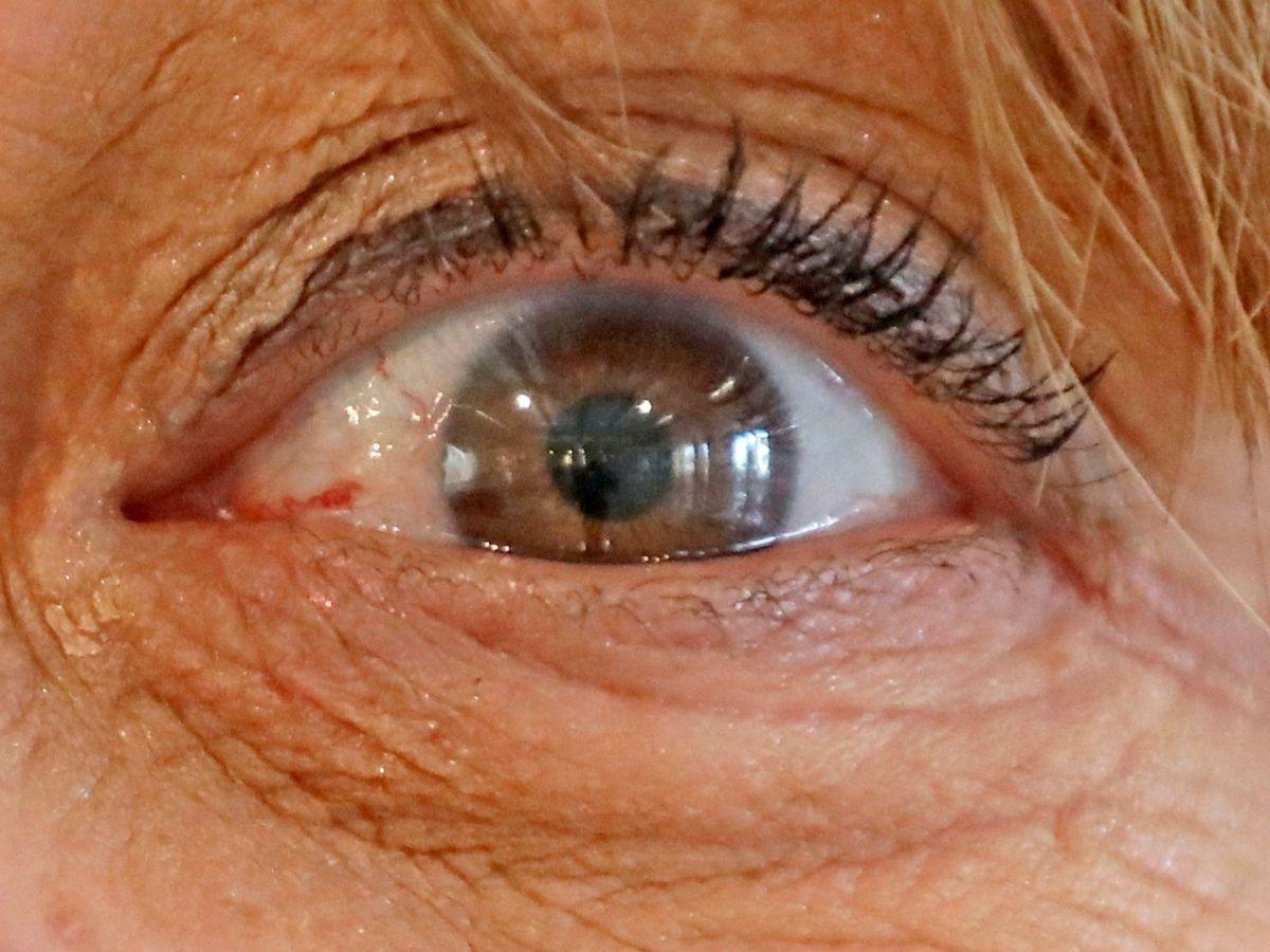 Foto: La retina, el espejo del cerebro con demencia. Foto: EFE Carlos García