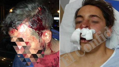 Dos versiones contrarias de la paliza al menor: ¿qué pasó realmente en Melilla?