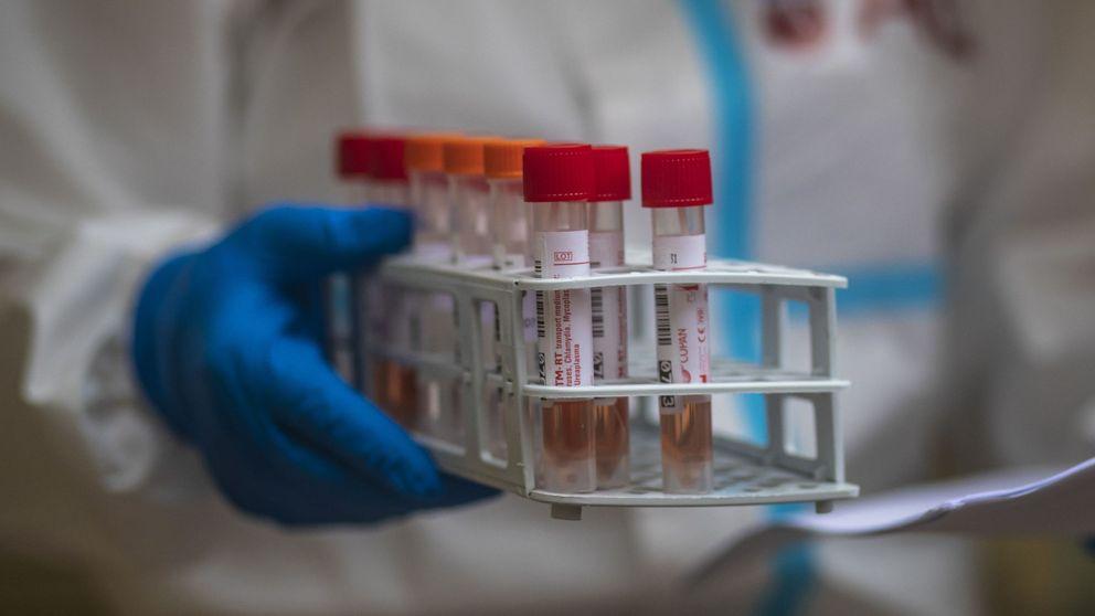 Sanidad notifica 9.419 contagios nuevos de coronavirus y 182 fallecidos