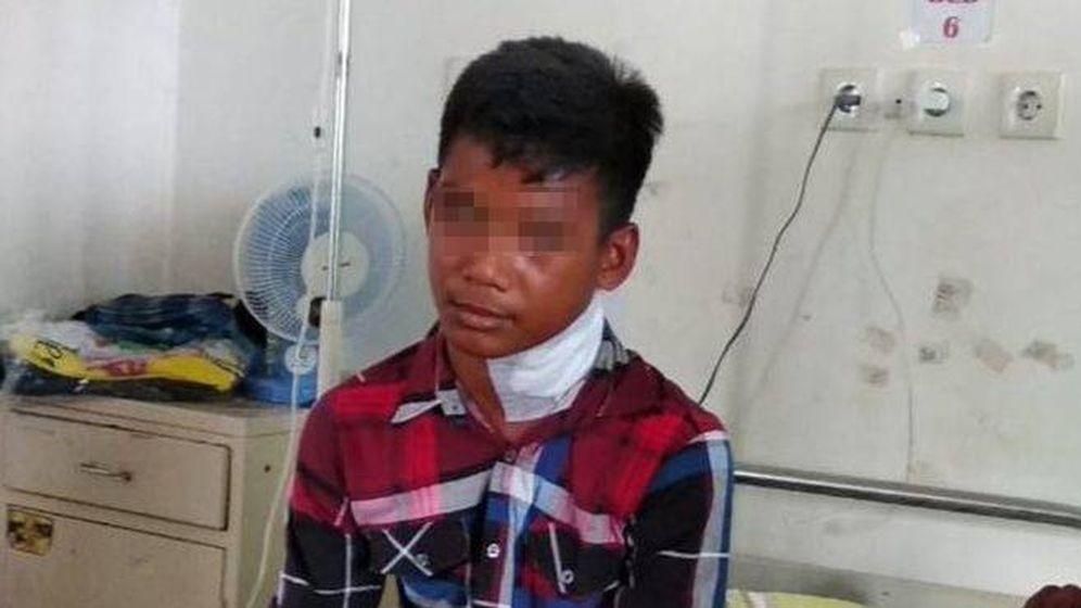 Foto: Muhammad, el joven herido por un pez aguja. (Facebook)
