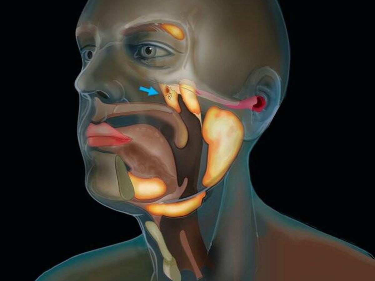 Foto: Señaladas con una flecha azul, las recién descubiertas glándulas salivales. Foto: (The Netherlands Cancer Institute